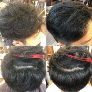 mans hair