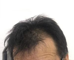 hair-restoration2