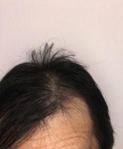 hair-restoration4