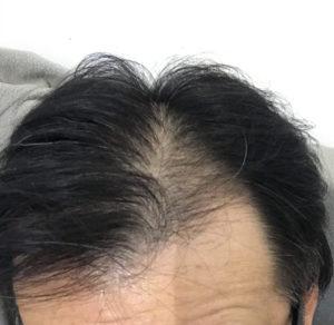 hair-restoration1